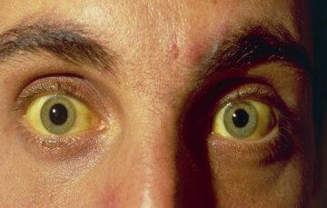 глаза гепатит