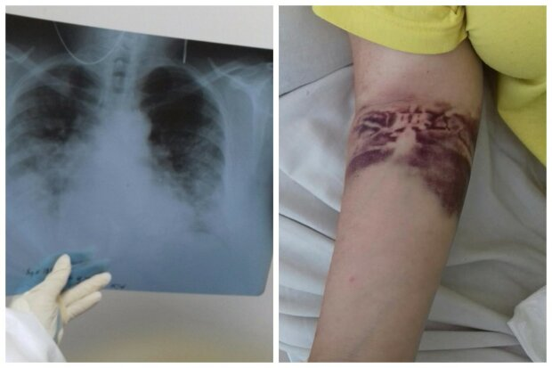 """Український лікар показала стан хворих, які борються з китайським вірусом: """"За лічені години..."""""""