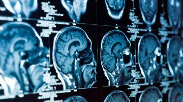 рентген, мозг, голова