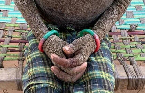 Загадкова хвороба перетворила семирічну дівчинку в камінь: від її виду пробирає до тремтіння