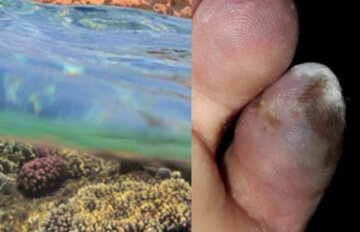"""""""Была небольшая царапина"""": девочке в Днепре ампутировали пальцы после отдыха за границей, фото"""