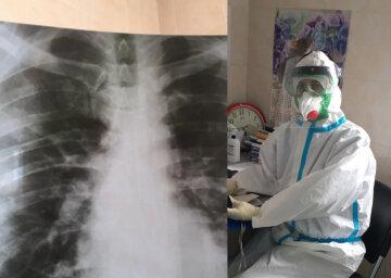 """""""Дихання не вистачає уже лікарям"""": українцям показали будні медиків в період епідемії"""