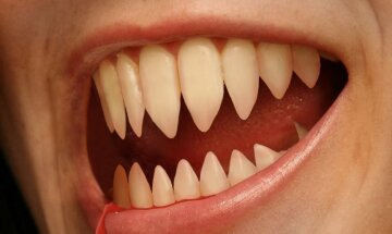 Evil-Pointed-Teetывывыh-58948