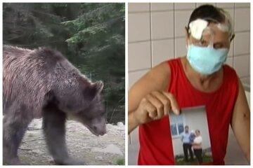 """""""Медики збирали його по частинах"""": ведмедиця накинулася на чоловіка і відгризла йому пів-обличчя, відео"""