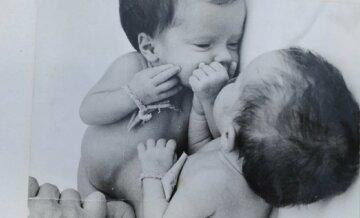 Через 30 років: як виглядають сіамські близнюки Таня і Аня після поділу
