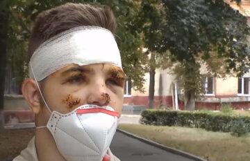 """Курсант, що вижив у катастрофі """"АН-26"""", розповів про порятунок друга: """"намагався гасити, потім підбігли інші і..."""""""
