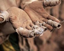 ruki-raba-s-perevyazannymi-palcami