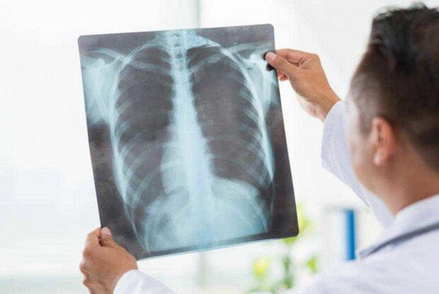 Эпидемия пневмонии бушует в Украине, жертв десятки: есть три страшных симптома