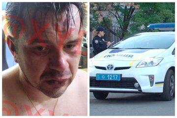 В Одессе разборки завершились стрельбой, среди раненых ребенок: кадры с места