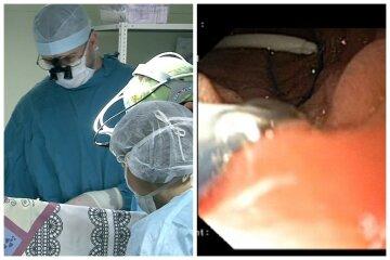 Нещастя сталося з дитиною після лікування горла аптечним засобом: деталі інциденту