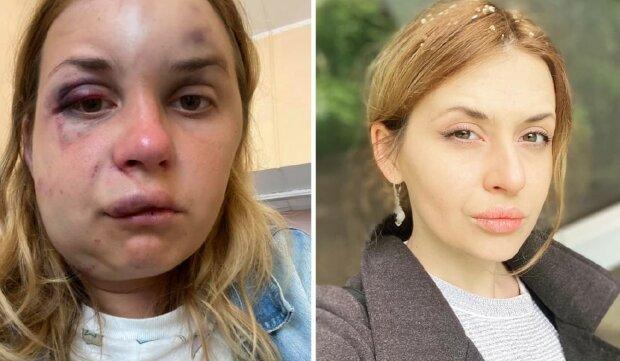 Журналистке, которую избили в поезде, стало хуже: появились новые фото