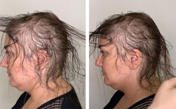 Парикмахер спасла внешность женщины, сделав из редких волос великолепную прическу
