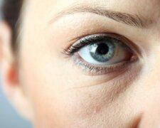глаз, морщины, веки